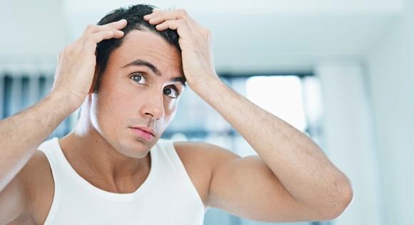 Wat valt er tegen erfelijk haaruitval te doen bij mannen?